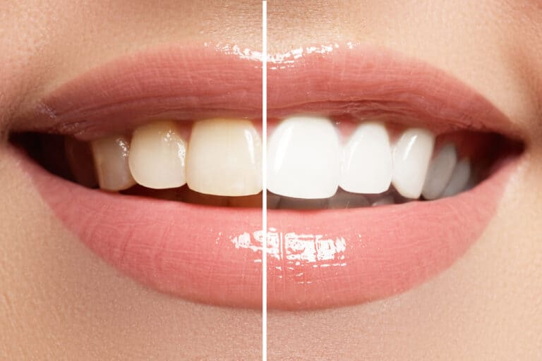 Top 7 Teeth Whitening Products That You Can Use At Home